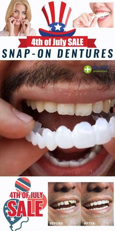 ✨✨The Snap-On Veneers That Gives Perfect, Bright Smiles! 😬 Achieve the picture perfect smile you've always dreamed of without costing you a fortune! GET YOURS NOW! Perfect Teeth, Perfect Smile, Teeth Care, Skin Care, Teeth Whitening Remedies, Stained Teeth, White Teeth, Tips Belleza, Things To Buy