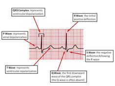 EKG basics PR Interval: From the start of the P wave to the start of the QRS complex PR Segment:From the end of the P wave to the start of the QRS complex QT Interval:From the start of the QRS complex to the end of the T wave QRS Interval:From the...