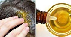 Olej rycynowy jest uważany za jeden z najbardziej skutecznych środków zapobiegających wypadaniu włosów. Sprawia też, że rosną one znacznie szybciej. W ciągu miesiąca średnio na długość przybywa nam około 1,5 cm włosów. Regularne stosowanie kuracji opartej Teak, Light Bulb, Live, Perfect Teeth, Bulb Lights, Lightbulbs, Lightbulb