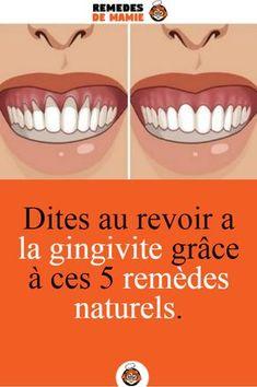 Diy Beauty, Beauty Hacks, Tooth Pain, Teeth Care, Tips & Tricks, Varicose Veins, Healthy Teeth, Belleza Natural, Natural Home Remedies