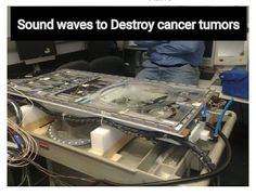 Sound waves to Destroy cancer tumors: A recent breakthrough in high-intensity focused ultrasound therapy (HIFU) technology has proven its use as an effective cancer treatment. A multi-institutional research team from China developed a semi-enclosed, spherical cavity transducer that can produce a focused, standing-wave field with a subwavelength-scale focal region and extremely high ultrasound intensity. The spherical cavity transducer appeared to generate tighter focal regions and greater
