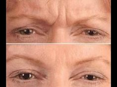 Effective Removal Of Glabellar Frown Lines With Facelift Revival Workouts