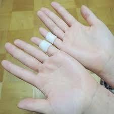 全身の多彩な症状に効果が確認きれた神経内科を専門にする京都市・安田医院には、さまざまな症状の患者さんが来院します。その中には、薬だけではなかなか改善しない症状もあります。そんな症状に、院長の安田譲先生がしばしば使って重宝しているのが、「小指