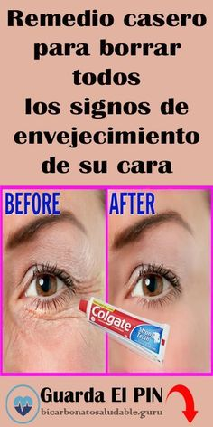 Baking Soda Face My Beauty Beauty Skin Health And Beauty Beauty Hacks Beauty Tips Cabello Hair Natural Beauty Recipes Diy Face Mask Beauty Skin, Hair Beauty, Felt Ball Rug, Homemade Valentines, Pores, Peeling, Tips Belleza, Skin Care Tips, Mascara