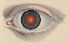 Eye Bildliche Darstellung der Krankheiten des menschlichen Auges, (Leipzig, 1854-1860)  Author: RUETE, Christian Georg Theodor (1810-1867)