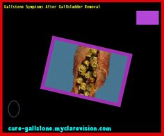 Gallstone Symptoms After Gallbladder Removal 144304 - Cure Gallstone
