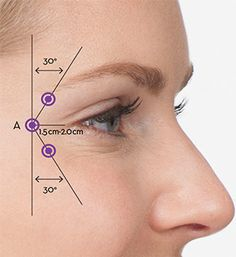 Kuvahaun tulos haulle botox injection sites diagram - Another! Facial Fillers, Botox Fillers, Dermal Fillers, Lip Fillers, Botox Injection Sites, Botox Injections, Skin Treatments, Relleno Facial, Photography