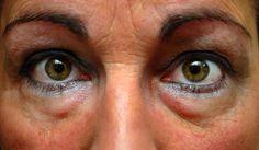 Schwellungen unter den Augen behandeln - Besser Gesund Leben