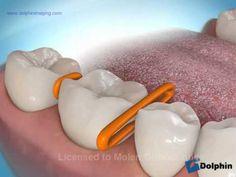 Tooth Separators - YouTube