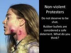 non-violent protesters and rubber bullets