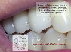 Dentes de metal e cerâmica