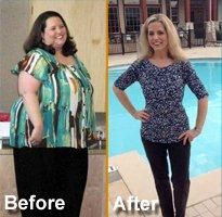 10 Best Morbid Obesity Treatment Images Bariatric Surgery Gastric