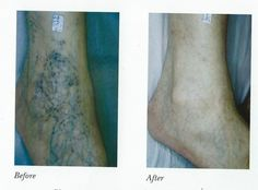 If you want to remove the #Varicose_Veins on #Legs? Visit #Charming_Skin & Vein Clinics at #Chicago, #Oak_Brook to get the laser treatment to disappear the varicose veins effectively. To Know more details click away.