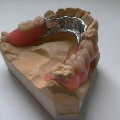 #зубныепротезы #валпласт #бюгельныепротезы #комбинированныезубныепротезы #дентальныепротезы #зубнойтехник #стоматология #стоматологическаяклиника #стоматологическаялаборатория #имплантациязубов #стоматолог #dentist #dentistry #dentista #dentures #denture #partial #стоматологиямосква #москва #moscow #valplast by insanitybalu Our Dentures Page: http://www.myimagedental.com/services/general-dentistry/dentures/ Other General Dentistry services we offer…
