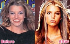 Jessica Simpson - Pouty Lips, Smaller Nose, Bigger Eyes,, stomach.arms etc.