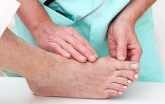 What is a bunion? An enlargement of bone or tissue around the joint at the base of the big toe. Bunions & Hammer Toe Treatment in Cedar Park, Jollyville, Austin, TX Gout Flare Up, Get Rid Of Bunions, Diabetes Mellitus Tipo 2, How To Cure Gout, Gout Remedies, Foot Pain Relief, Hammer Toe, Stomach Problems, Types Of Arthritis