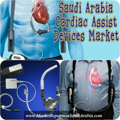 #SaudiArabia #CardiacAssist Devices Market