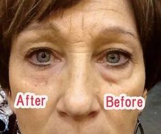 Where Can I Buy Jeunesse Instantly Ageless Eye Cream ? Come to Our Official Website and You Could Buy Best Jeunesse Instantly Ageless Anti Aging Eye Cream, Under Eye Bags, You Look Beautiful, Puffy Eyes, Revolutionaries, Get Started, Anti Aging, Skin Care, Youtube, Things To Sell
