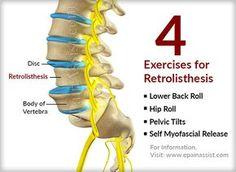 Exercises to Help Relieve Spondylolisthesis Pain