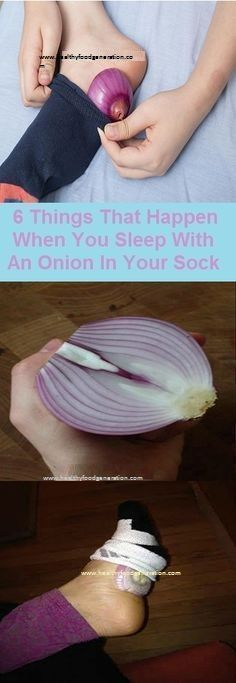 6 Things That Happen When You Sleep With An Onion In Your Sock - Healthy Food Generation Herbal Remedies, Health Remedies, Home Remedies, Natural Remedies, Arthritis Remedies, Health And Beauty, Health And Wellness, Health Fitness, Health Care