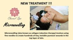 Microneedling Treatment !!!  It is a minimally-invasive non-surgical and non-ablative procedure for facial rejuvenation that involves the use of a micro-needling device to create controlled skin injury.   Call for more details or book your appointment today! www.charnelspa.com or 702-808-8506  #charnelspa #microneedling #bestspainvegas