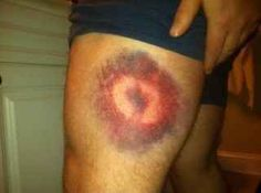 Ridiculous bruises from balls