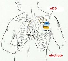 Implantable cardioverter-defibrillator (ICD) is a small battery-powered electrical impulse generator that is implanted in patients who are at risk of sudden cardiac death due to ventricular fibrillation and ventricular tachycardia. It detects cardiac arrhythmia and correct it by delivering a jolt of electricity. Ability to revert ventricular fibrillation. Can include both atrial and ventricular arrhythmias. Can perform biventricular pacing for congestive heart failure or bradycardia.