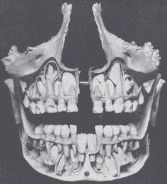 corporisfabrica:  Cutaway of mandible and maxilla, exposing teeth.  Child's mandible and maxilla - you can see the adult teeth inside their formative cavities (spaces) in the bones, ready to (and in some cases already starting to) push the baby teeth out, and replace them with the permanent set that we keep for the rest of our lives. This child was probably around 6.5 years of age, judging by the degree of eruption. From Gray's Anatomy (1918 printing) via Wikimedia Commons.