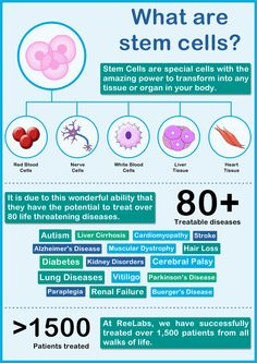 16 Best Stem Cell Banking & Therapy - ReeLabs images in 2014 | STEM