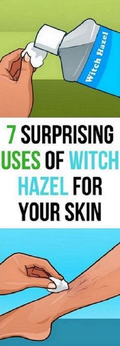 7 BEAUTY USES FOR WITCH HAZEL