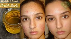 3 Day Challenge - This miracle oil can remove all the spots and scars on...