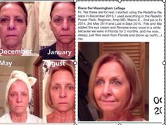 Diane's results after 5 months. She first used the Redefine Power Pack with the Amp Md and Macro Exfolliator and then added the eye cream and, occasionally, the Reverse since she was in the sun a lot.