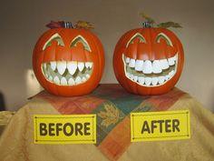 Noch 2 Wochen bis Halloween, aus diesem Grund: Mr. Kürbiskopf vor und nach der Zahnbehandlung.
