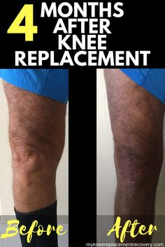 4 months after knee replacement surgery and Im feeling pretty good My scar has healed much better than I expected and Im doing most of the activities I did prior to TKR s. Knee Replacement Recovery, Knee Replacement Surgery, Joint Replacement, Knee Surgery Recovery, Acl Surgery, Bursitis Hip, Knee Osteoarthritis, Knee Exercises, Knee Stretches