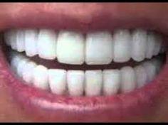 Deland Implant Dentistry- Expert Dentist near New Smyrna Beach, Port Orange, South Daytona & Daytona Beach. please visit-  www.delandimplants.com/dentistdaytonabeach.htm