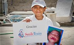 Smile Train: Leading Children's Charity   Cleft Lip & Palate Surgery...Teach your kids the value of philanthropy by sponsoring a child in their name for Christmas.