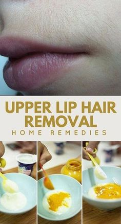 Natural Remedies For Skin 6 Best Upper Lip Hair Removal Home Remedies - Excess facial hair can be a very touchy subject for women, especially if they have unwanted hair on their lip. Upper lip hair not only bothers them because it appears gross, Natural Facial Hair Removal, Upper Lip Hair Removal, Face Hair Removal, Hair Removal Diy, At Home Hair Removal, Hair Removal Cream, Natural Skin Care, Natural Hair, Unwanted Facial