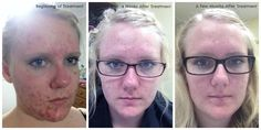 "Over the course of a few months the use of Arbonne products significantly changed Kaitlyn's angry and problematic skin. ""Like"" my FB page at Surshae Arbonne Independent Consultant. Consultant ID 21565488"