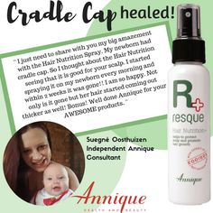 A leader in the South African health and beauty industry, Annique's products contain Rooibos - a trusted and scientifically proven remedy. Annique creates life-changing opportunities every day. Cradle Cap, Come And Go, Coming Out, You And I, Health And Beauty, Healing, Nutrition, Personal Care, Skin Care