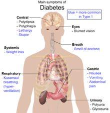 Diabetes mellitus type 2 - Signs and Symptoms