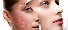 Miljoenen mensen, ,kampen met huidproblemen als acne, eczeem, rosacea, en de beschikbare over de toonbank middelen die je kunt kopen via drogisterij en apotheek, maar zelfs de allopathische middelen die
