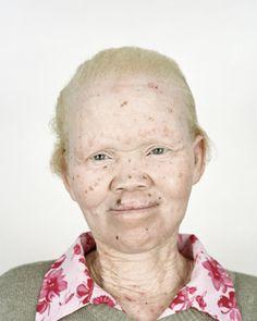 Albino African, Albinism, Black People, Celebrities, Selfies, Beautiful, Google Search, Black, Celebs