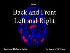 Trauma Effects and the Brain Developmental Psychology, Traumatic Brain Injury, Therapy Activities, Ptsd, Chakra, Breathe, Mental Health, Depression, Native American