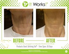 Results just from applying a gel that works!   Call or text me - Kristine  206-335-9149