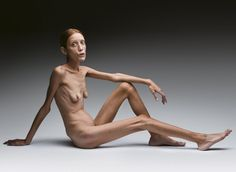 President's Lecture: Oliviero Toscani Anorexia