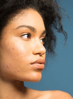 6 Things That Should Never Happen At The Derm If You Have Dark Skin #refinery29  http://www.refinery29.com/black-skin-care-dermatologist-red-flags