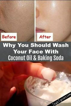 This baking soda and coconut oil face mask for acne scars will deeply cleanse the skin, exfoliate, and prevent acne all in one! You've undoubtedly seen tons of baking soda and coconut oil face mask recipes all over the Internet, but have you actually Baking With Coconut Oil, Coconut Oil For Face, Coconut Oil Face Cleanser, Coconut Oil Beauty, Coconut Oil Acne, Coconut Oil Benefits, Coconut Oil Lotion, Diy Coconut Oil Hair Mask, Uses For Coconut Oil