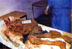 Srebrenica/Zvornik region: The body of a Bosnian Serb boy murdered by Naser Oric's forces in the Srebrenica pocket in eastern Bosnia.