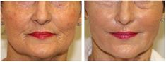 Wow, her face became so smooth and wrinkle-free with PRP therapy! I am very impressed by her new appearance. This treatment must really work. I will pass this information on to my mom since she's wondering about these types of cosmetic procedures.