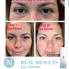 Neora offers exclusive age-defying skincare and wellness products with patented ingredients to help people look and feel their best. Salicylic Acid Acne, Love Your Skin, Eye Serum, Acne Treatment, Anti Aging Skin Care, Health And Beauty, Things That Bounce, Eyes, Nerium